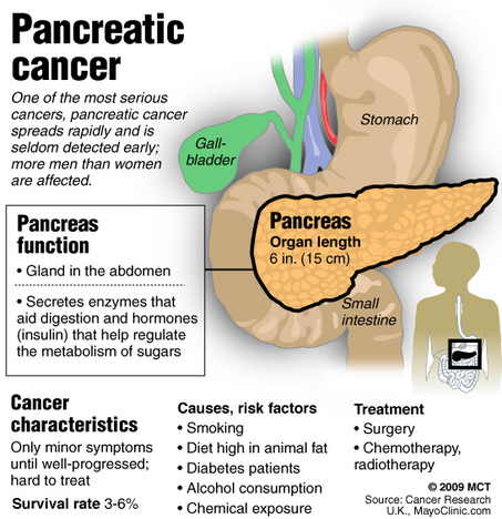 7 Warning Signs Of Pancreatic Cancer Daily Health Post