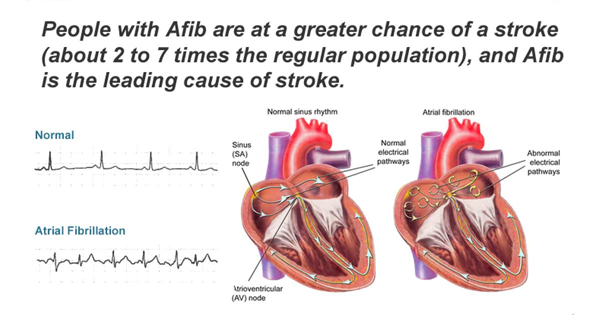 Afib and viagra