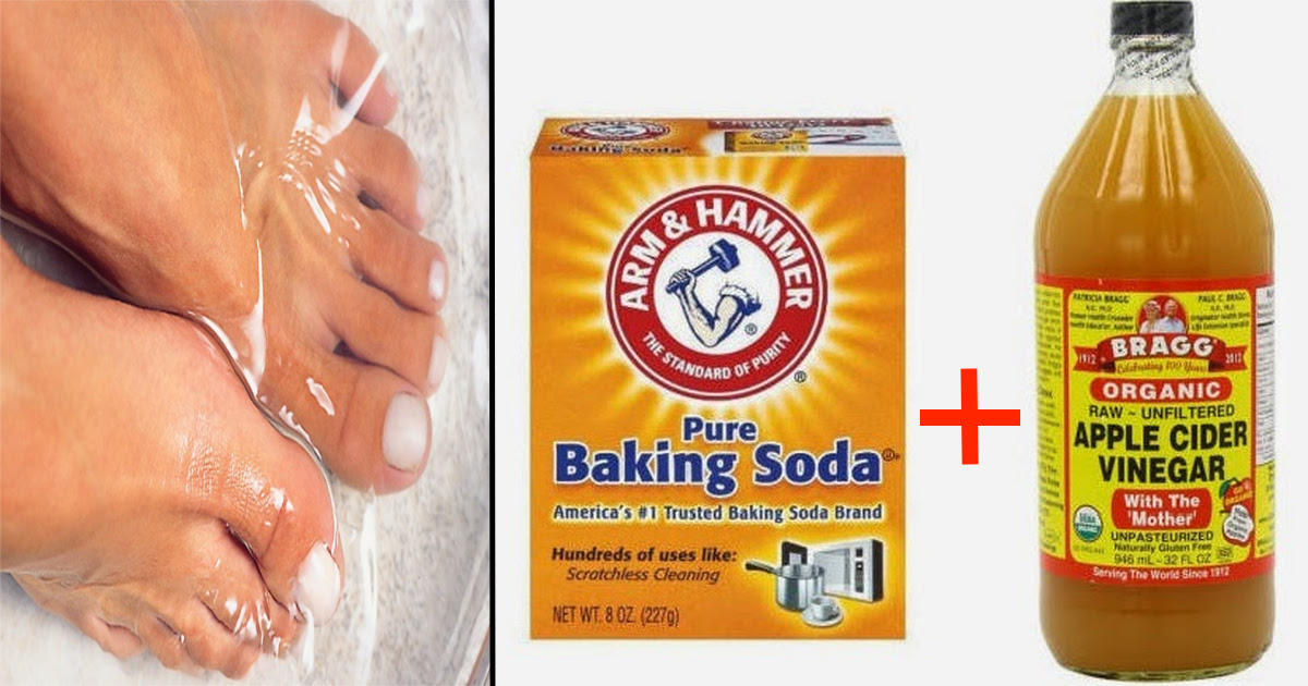 This 2-Ingredient Mix Is All You Need To Get Rid Of Nail Fungus For ...