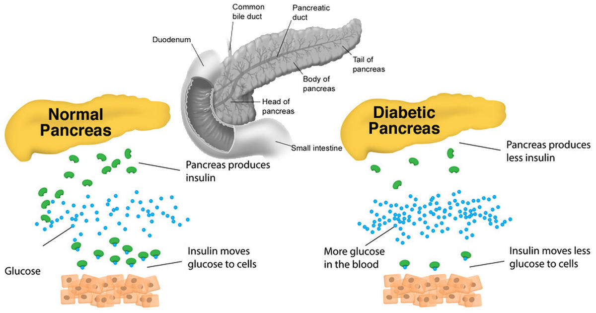 Can you get rid of diabetes by losing weight 30s