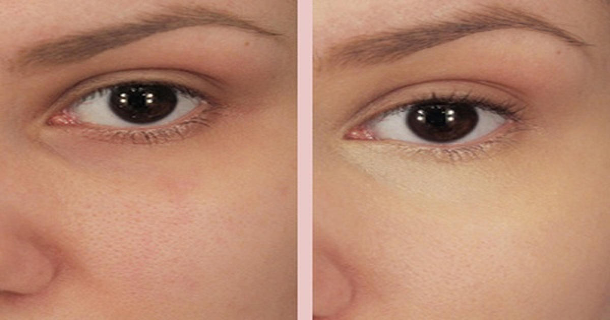 how to get rid of dark circles under eyes quick