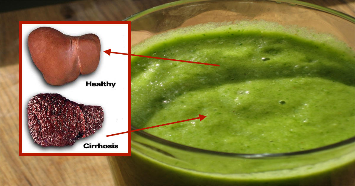 This Fatty Liver Cleanse Will Reset Your Metabolism And