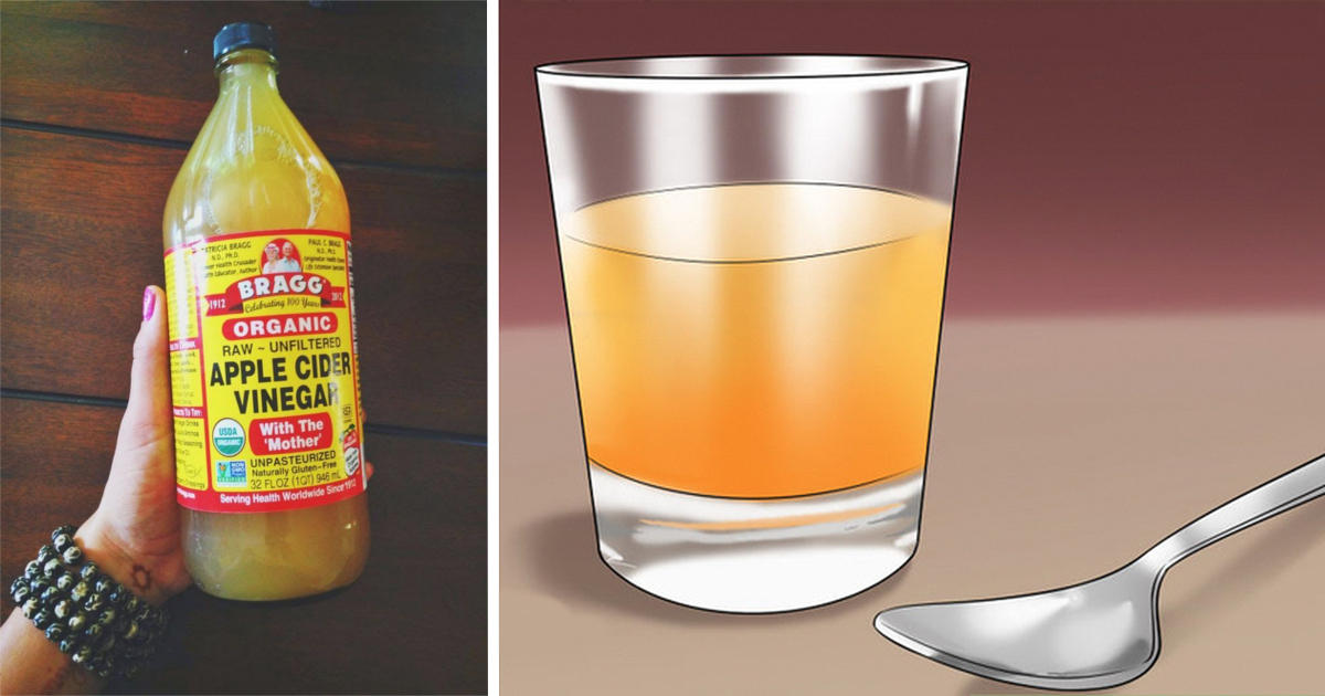 How To Use Apple Cider Vinegar For Acid Reflux And Candida