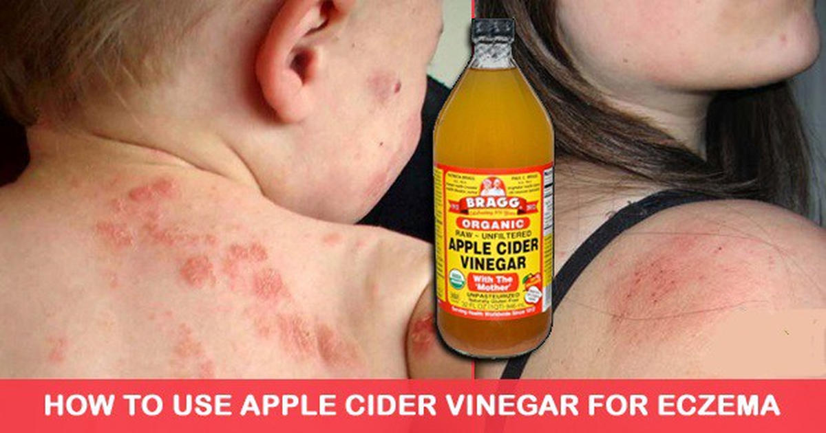How To Use Apple Cider Vinegar To Fight Eczema Naturally