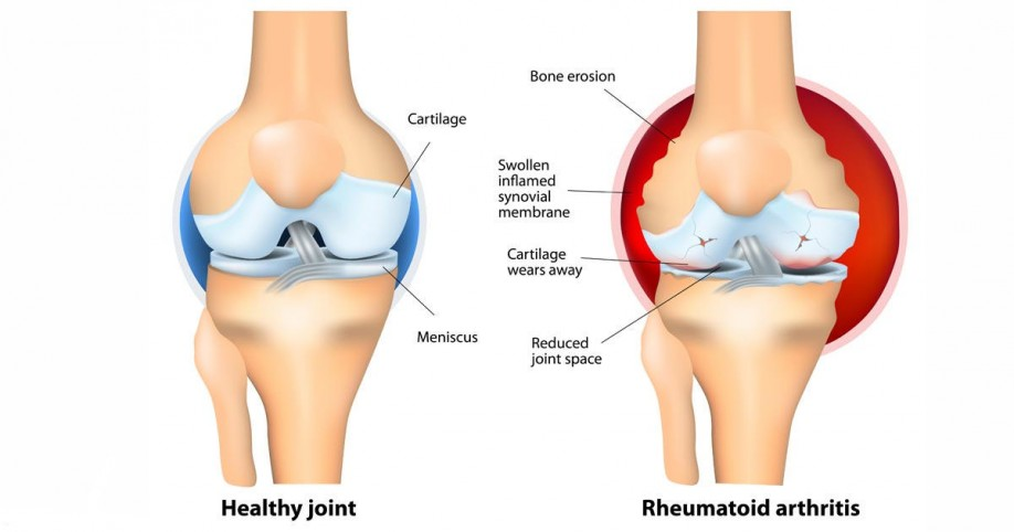 Natural Treatment Palindromic Rheumatoid Arthritis
