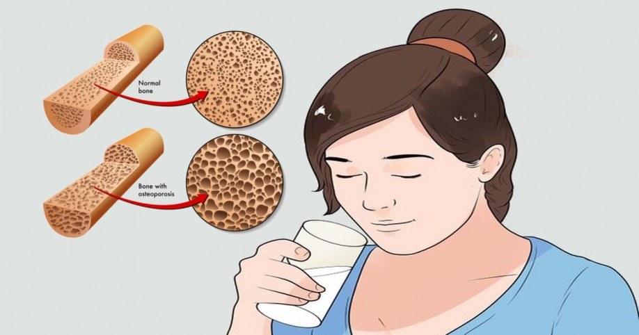 calcium osteoporosis