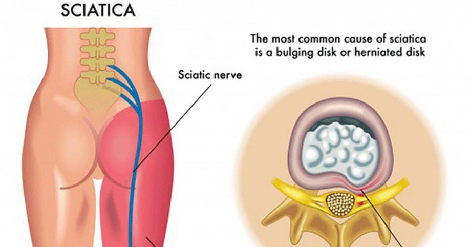 Natural Cure For Muscle Pain